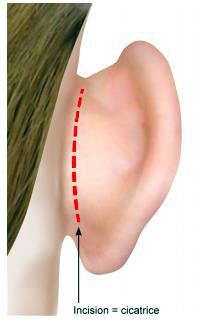 Cicatrice Chirurgie des oreilles décollées ou otoplastie à Paris - Dr Ozil schéma