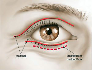 Cicatrice Chirurgie esthétique des paupières ou blépharoplastie à Paris - Dr ozil