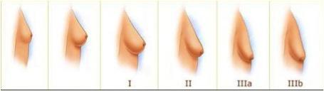 Opération esthétique chute des seins paris