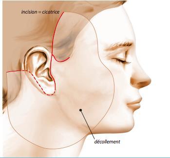 Schéma Lifting du visage ou lifting cervico facial à Paris - Dr Camille Ozil