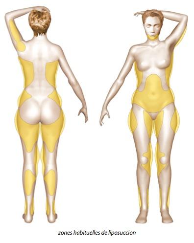 Lipoffilling / liposuccion à Paris - Dr Ozil