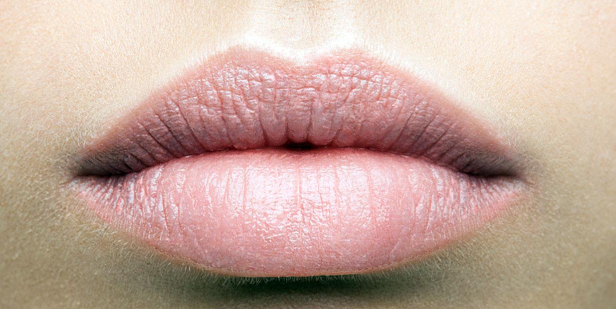 Gommer les rides verticales des lèvres à Paris - Dr Ozil