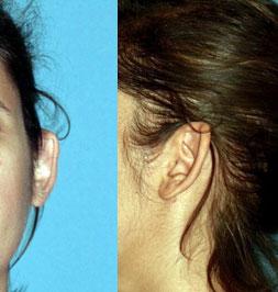 Before-Otoplastie ou chirurgie esthétique des oreilles