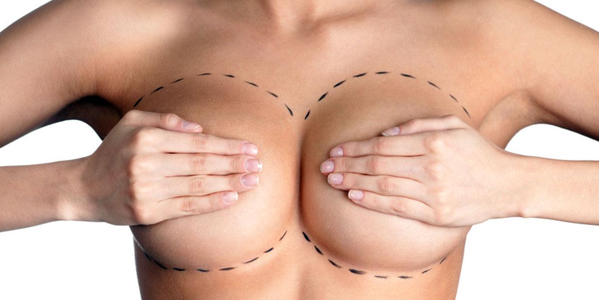 Augmentation mammaire par prothèses à Paris - Dr Ozil