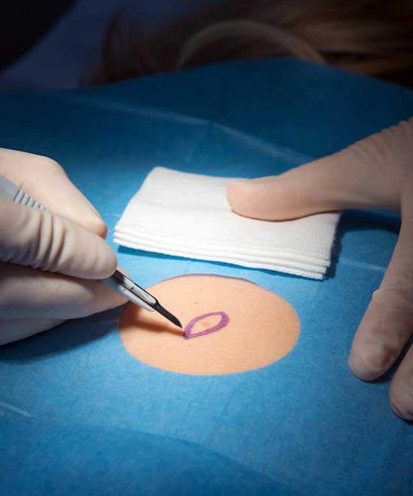 Consultation de chirurgie et de médecine esthétique à Paris - Dr Camille Ozil